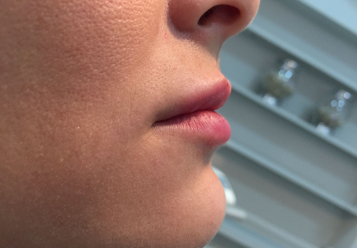 Lip augmentation with Hyaluronic Acid
